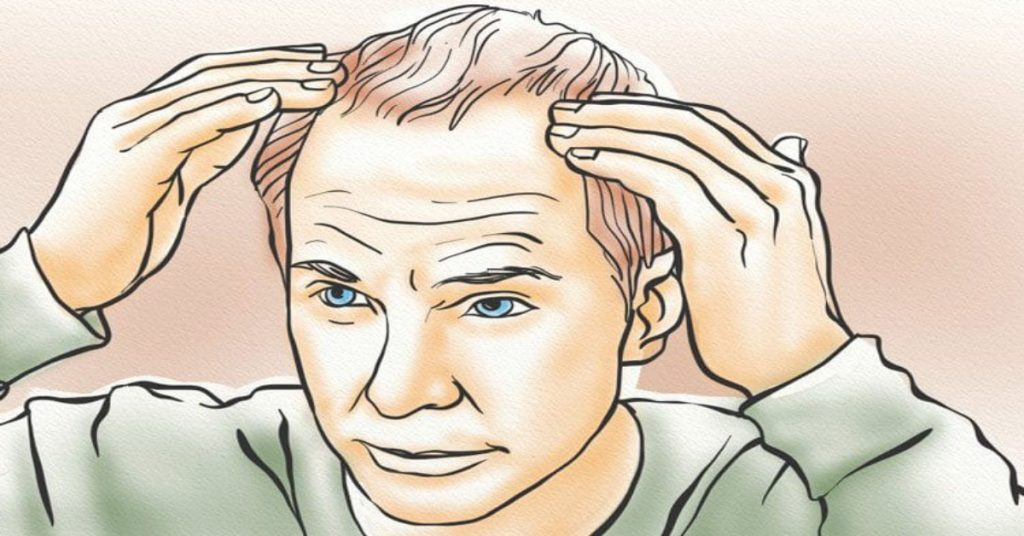 The Biggest Myths About Hereditary Hair Loss