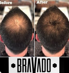 What is Bravado? Surgery Group