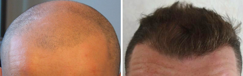 Hair Transplants Special Offer Surgery Group