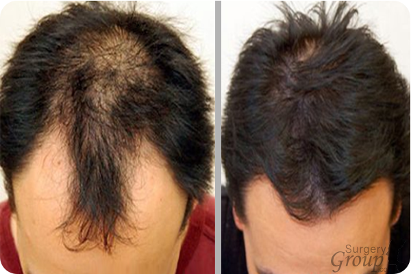 Hair Transplants Surgery Group