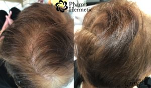 Pharma Hermetic Hair Recovery Program HRP Surgery Group