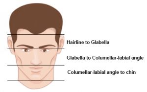 What is a Mature Hairline Surgery Group