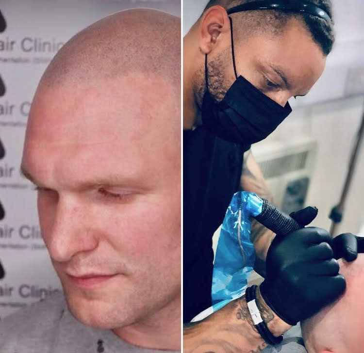 Scalp Micropigmentation Surgery Group