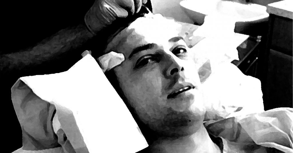 Lewis Ellis Hair Transplant