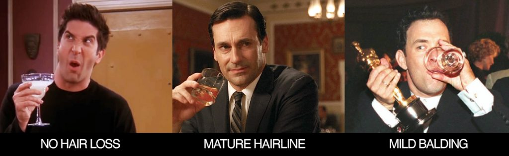 Maturing Hairline vs. Receding Hairline Surgery Group